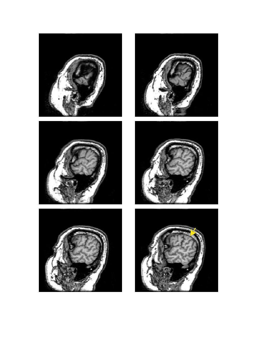 头颅矢状面MRI