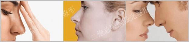 北京鼻尖整形手术过程解析