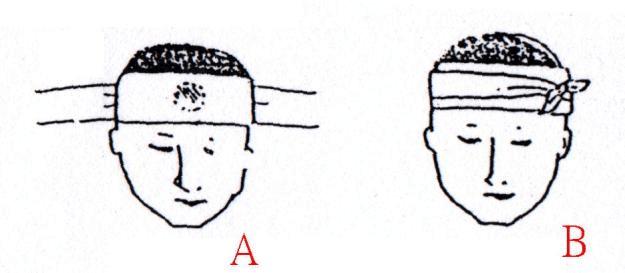 三角巾包扎方法[1][1]