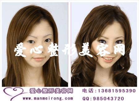 北京专家介绍三种下颌角整形术方式剖析