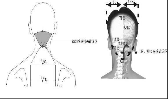 浅谈脊柱相关病九大诊疗区及其诊疗思路