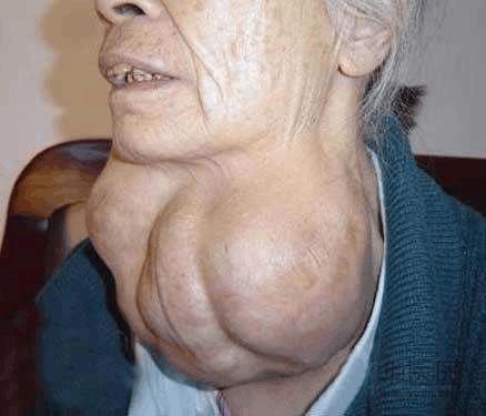 甲状腺肿块的诊断和处理思路