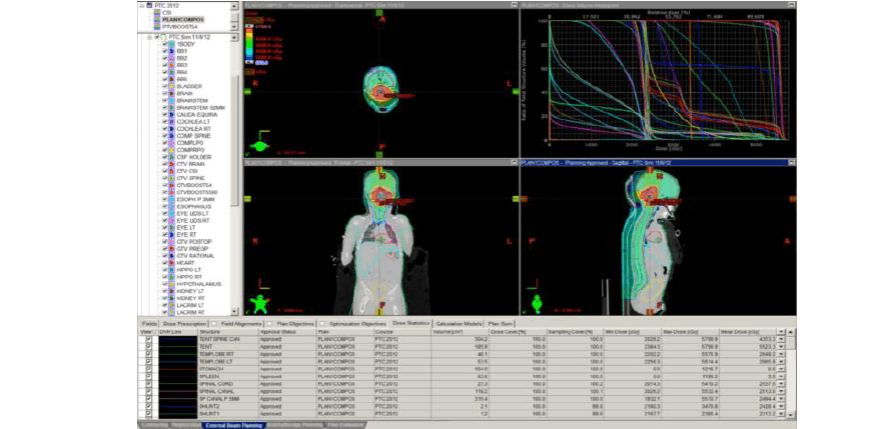 儿童癌症患者pet ct导引治疗规划的临床效果图片