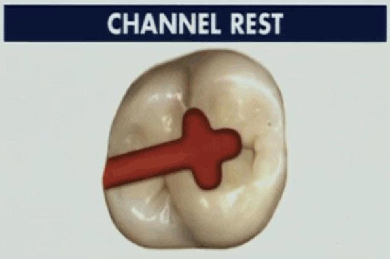 可摘局部义齿-设计图的画法图片