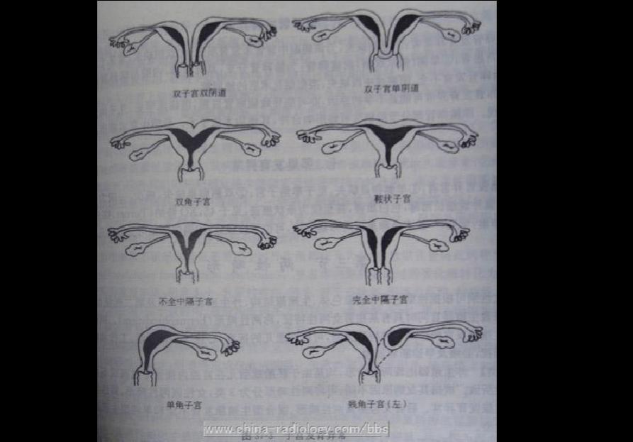 天马幻想双子宫攻略图_双子宫及重复子宫