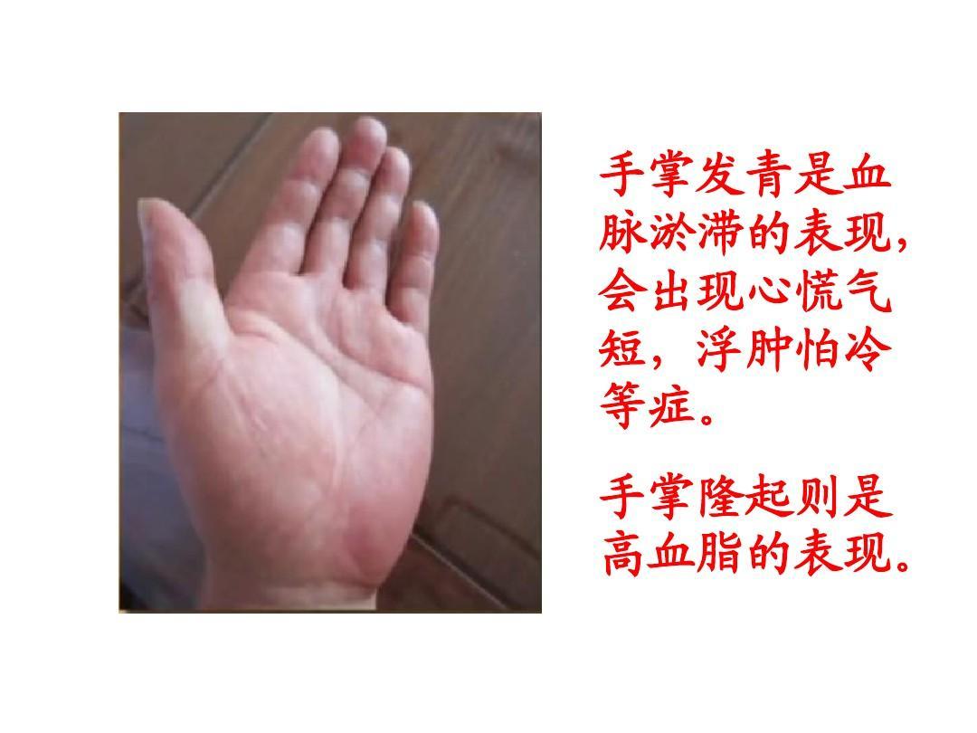 手掌发青是血 脉淤滞的表现, 会出现心慌气 短,浮肿怕冷 等症.