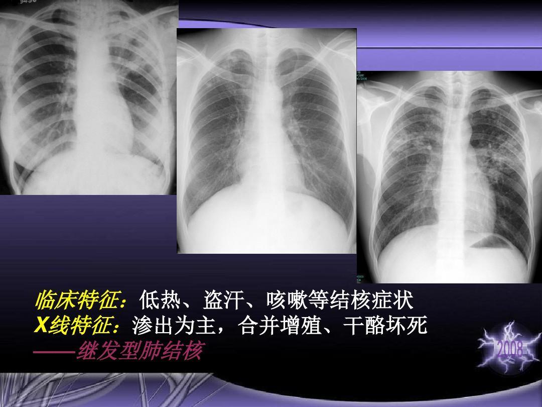 咳嗽等结核症状 x线特征:渗出为主,合并增殖,干酪坏死 ——继发型肺