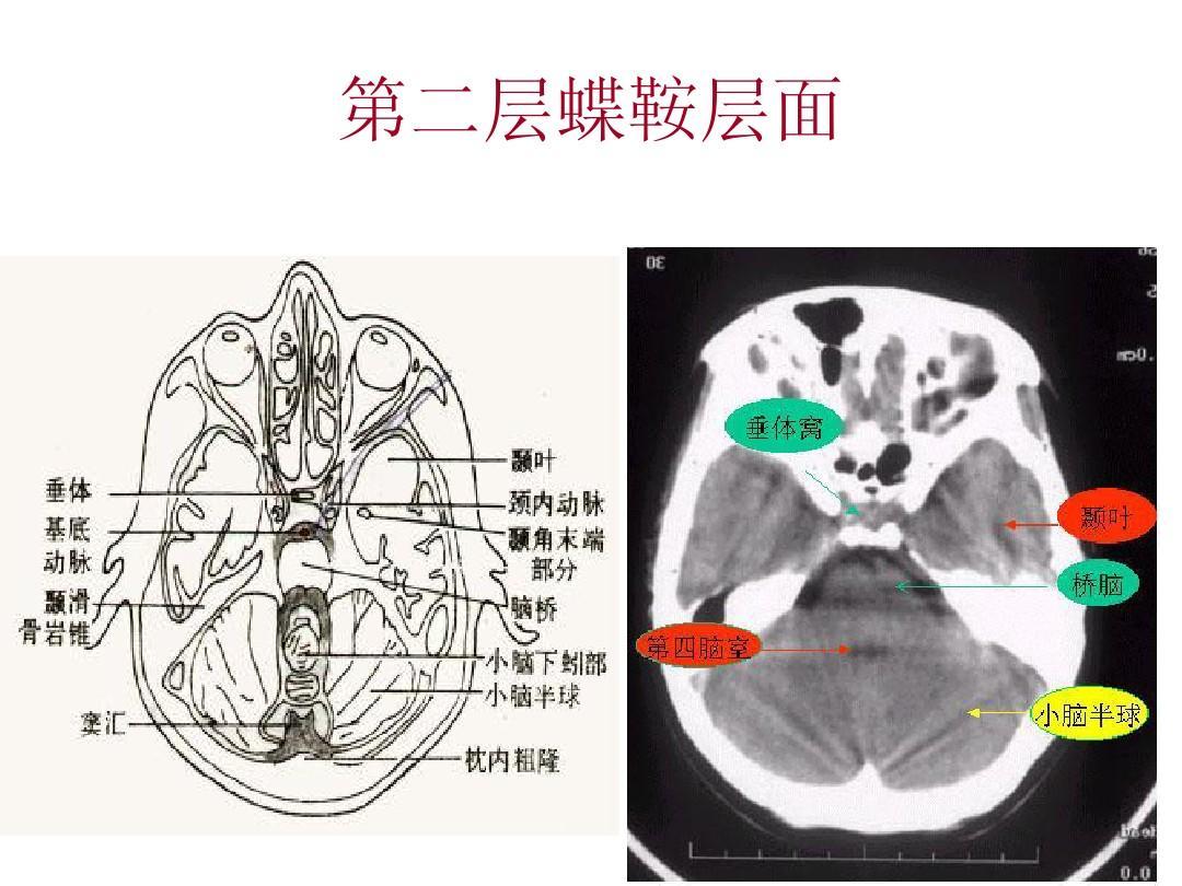 颅脑基本v颅脑的ct认识ppt诊断的我课件ppt电脑图片