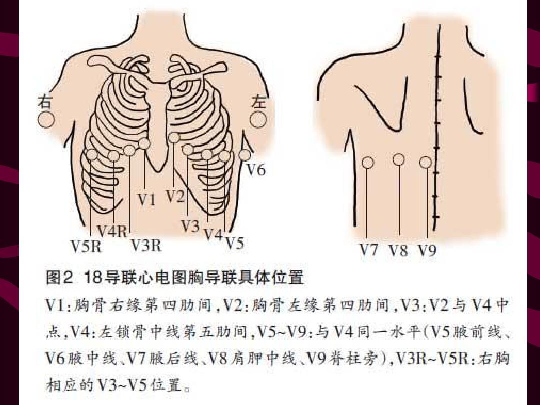心电图导联连接