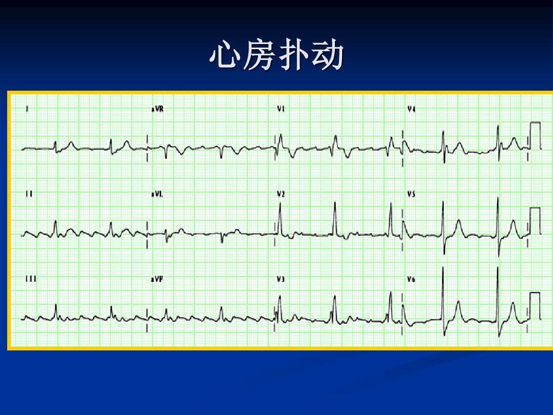 心电图图谱