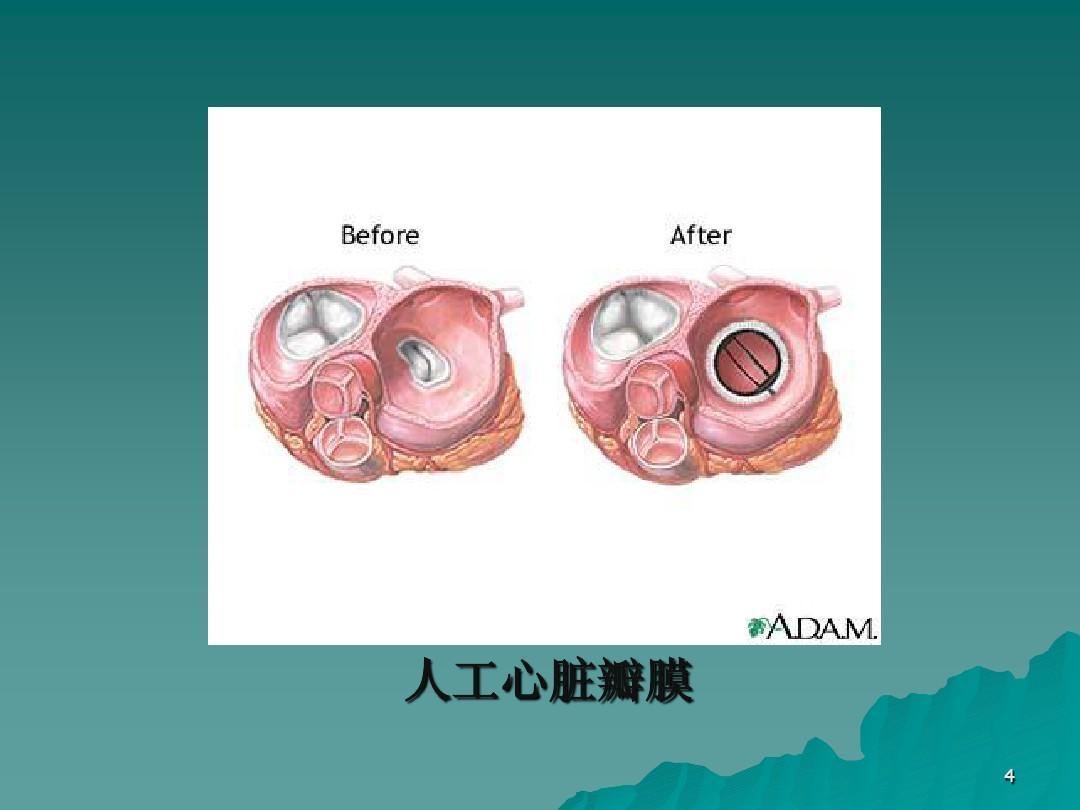 人工心脏瓣膜 4