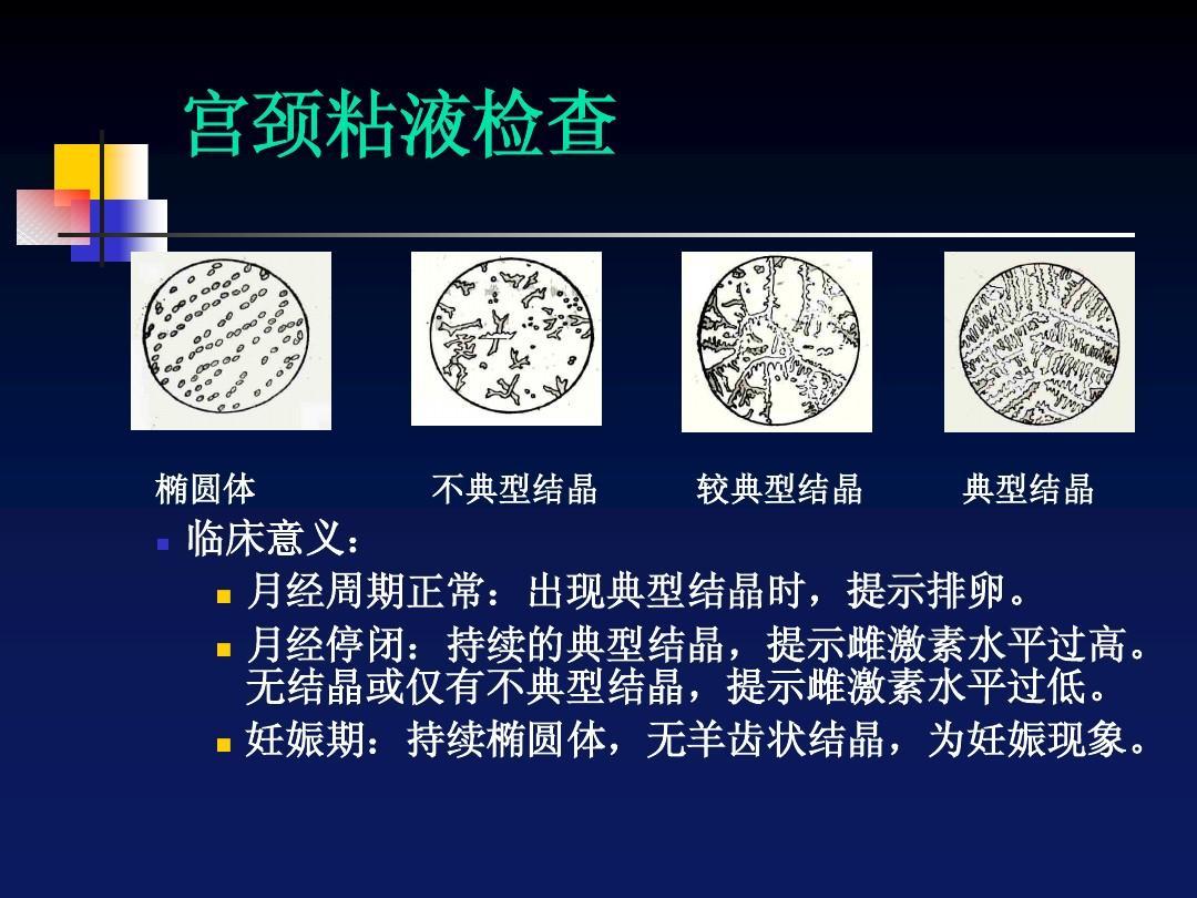 妊娠期:持续椭圆体,无羊齿状结晶,为妊娠现象.图片