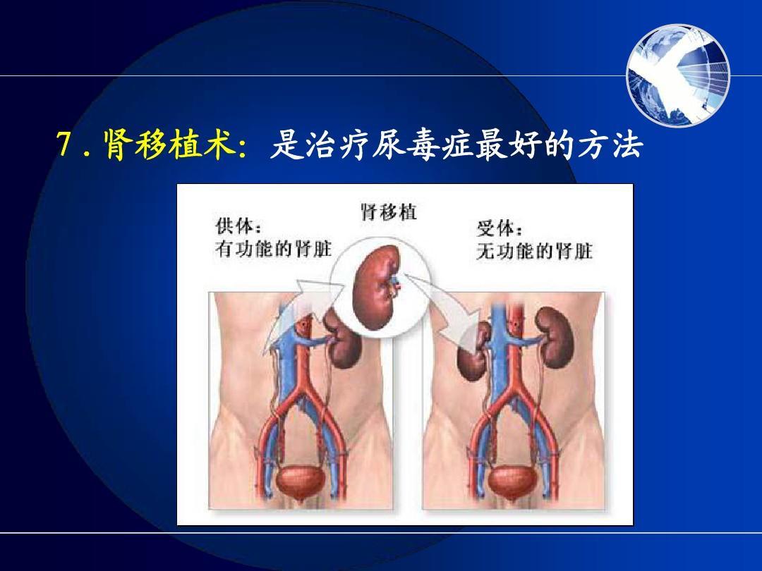 信息综合征护理糖尿病疾病系统教学病人护理相关呼吸护理的衰竭肾病中的肾病技术应用图片