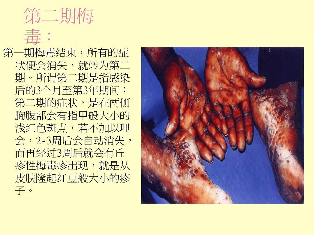 成人女生殖器全集囹/�_女性生殖器官位置图ppt