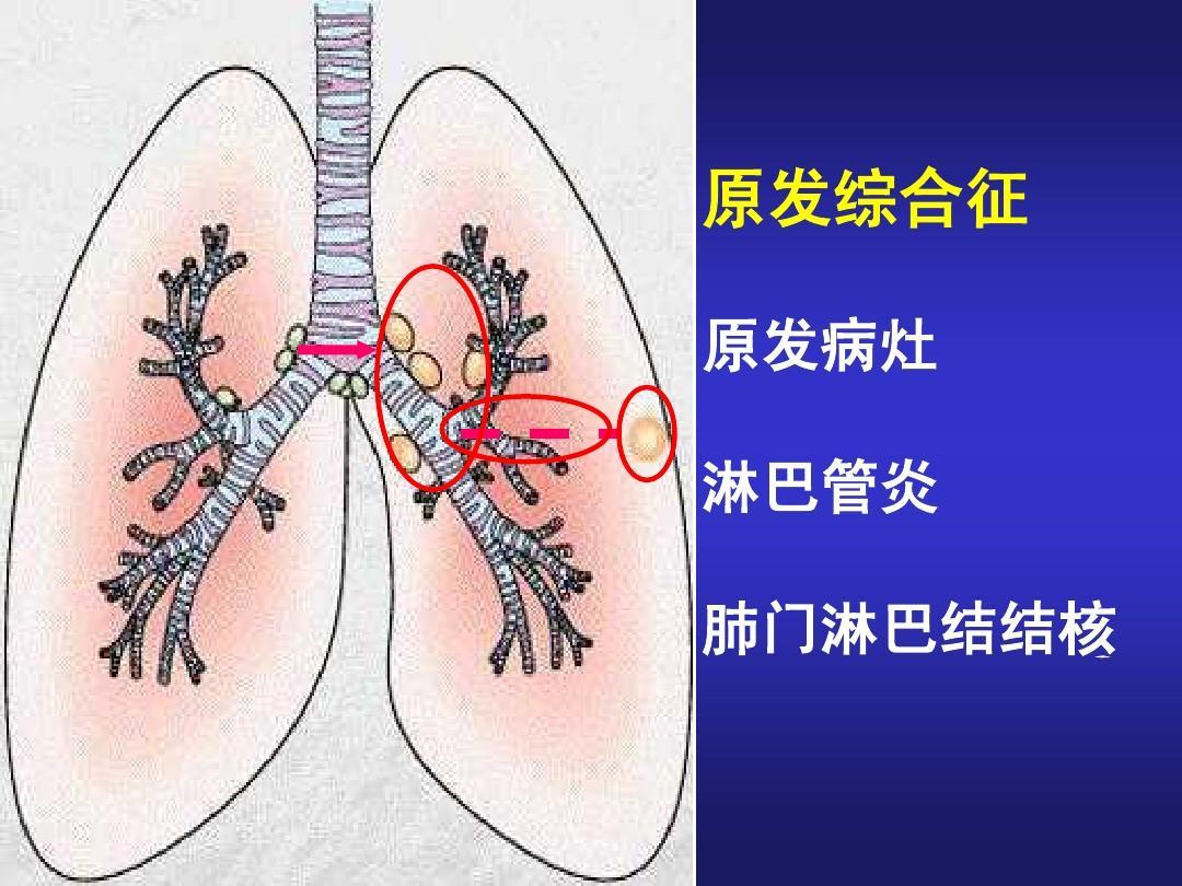 原发综合征 原发病灶 淋巴管炎 肺门淋巴结结核