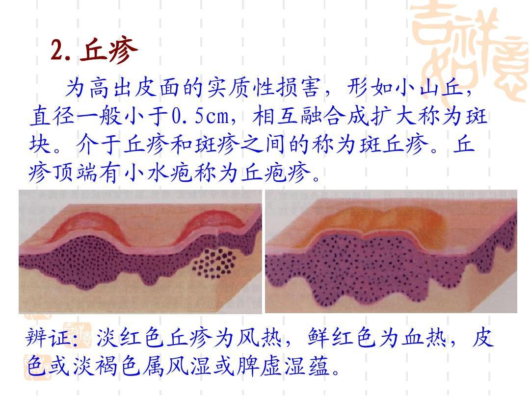 血热皮肤病囹�a_中医皮肤病总论ppt