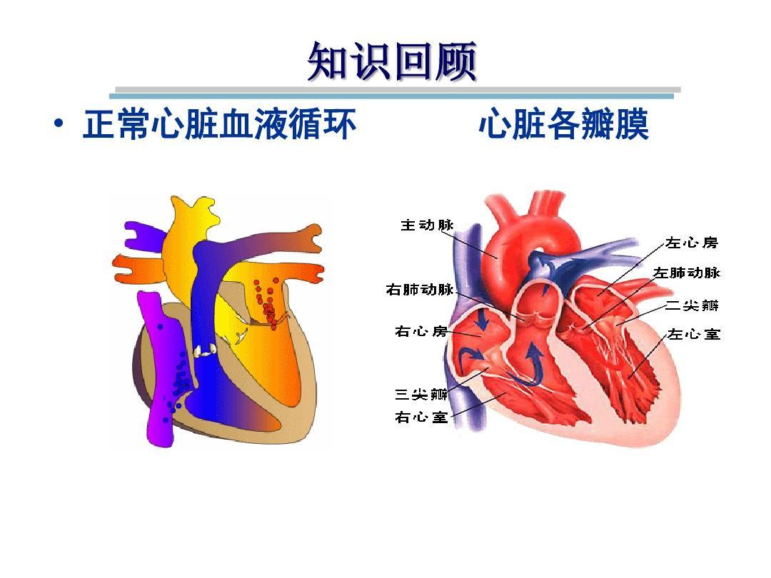 心脏瓣膜病ppt