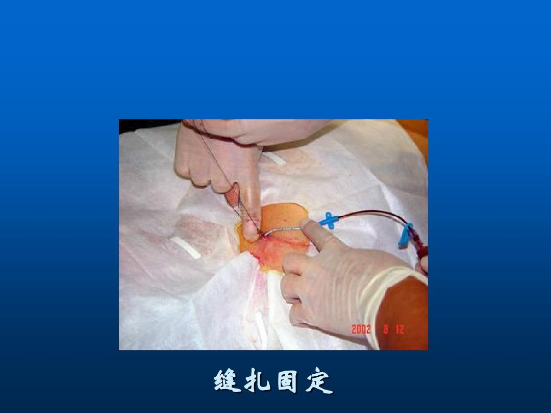 深静脉穿刺置管术(手把手教你做)ppt