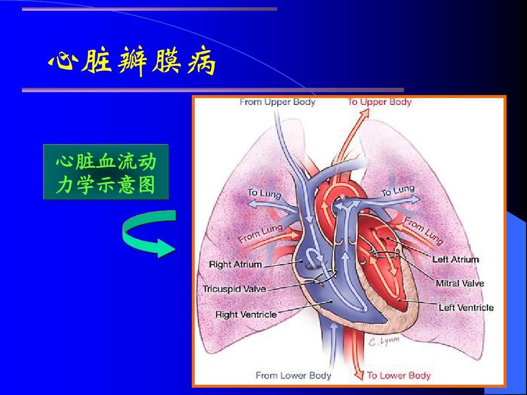 心脏瓣膜病讲稿-幻灯ppt