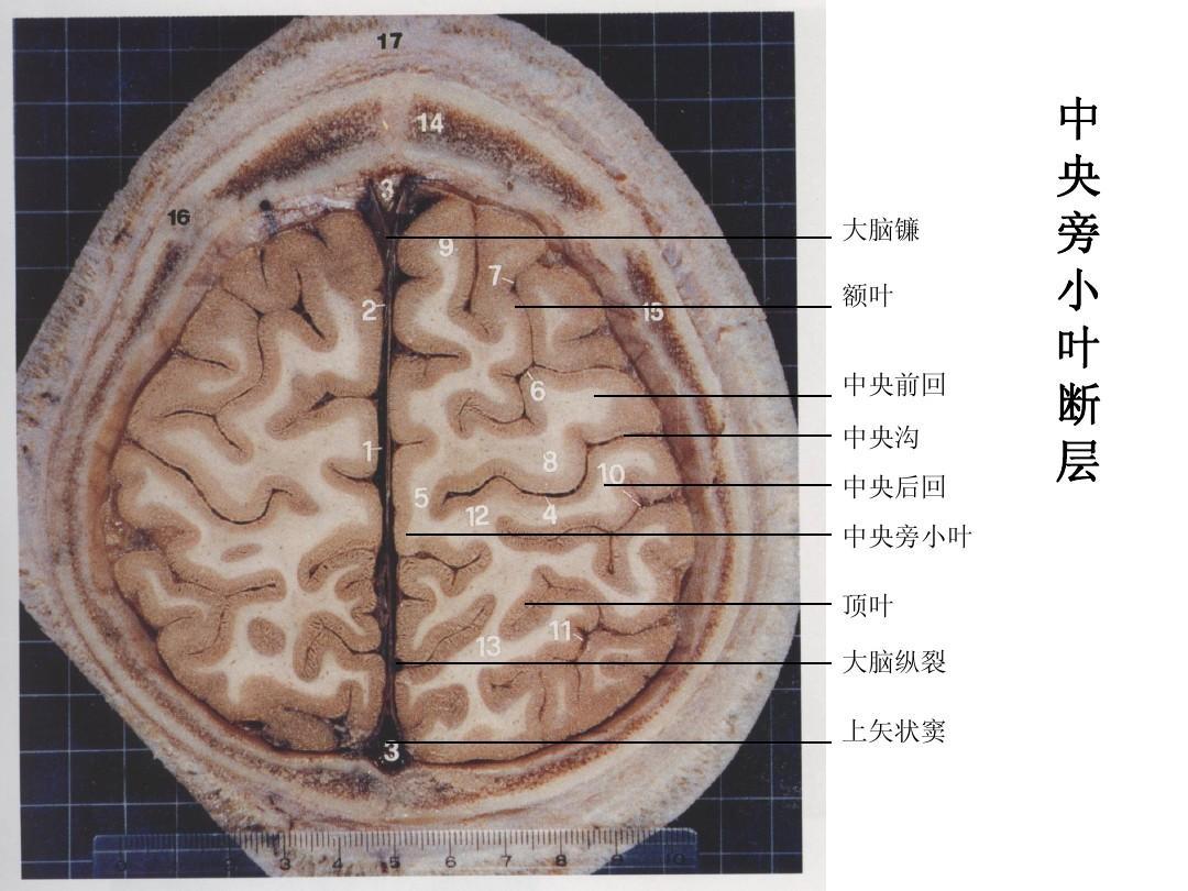 脑部断面解剖
