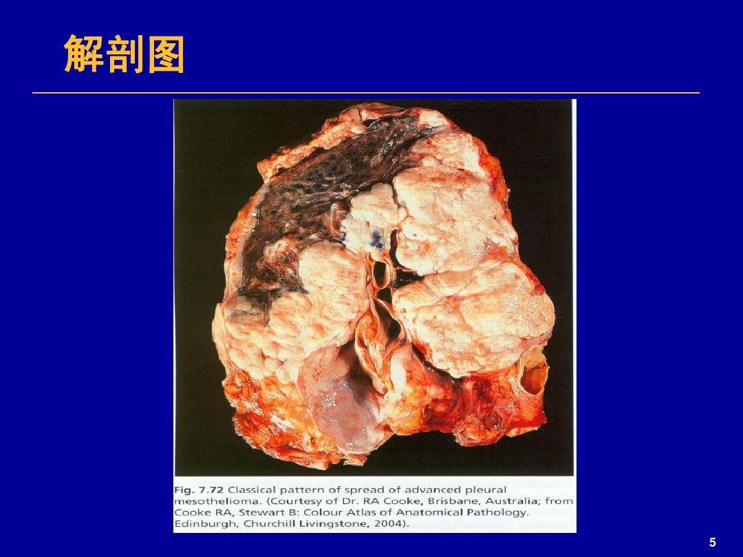 恶性胸膜间皮瘤化疗6个疗程转移该如何治疗【恶性胸膜