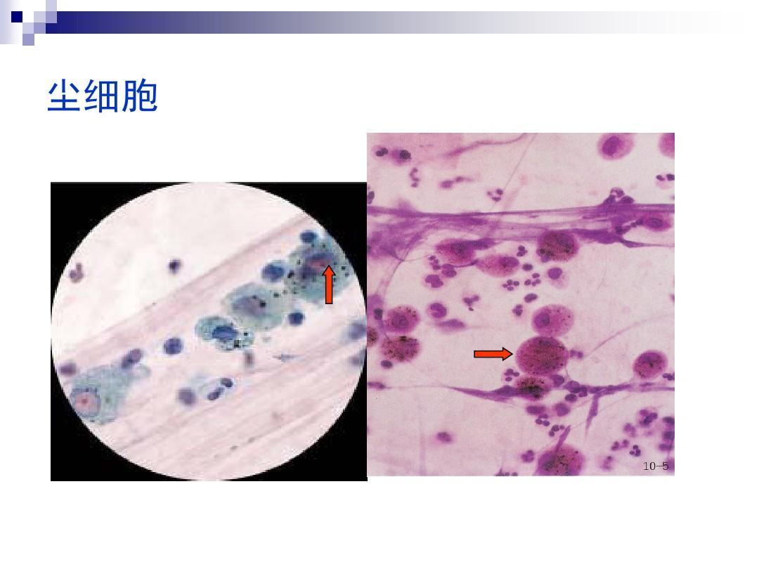 检查十8痰,视频腔积液实验ppt同步缝纫机教学浆膜教程图片