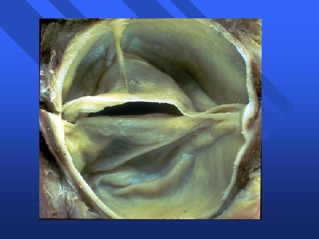 心脏瓣膜病的护理ppt