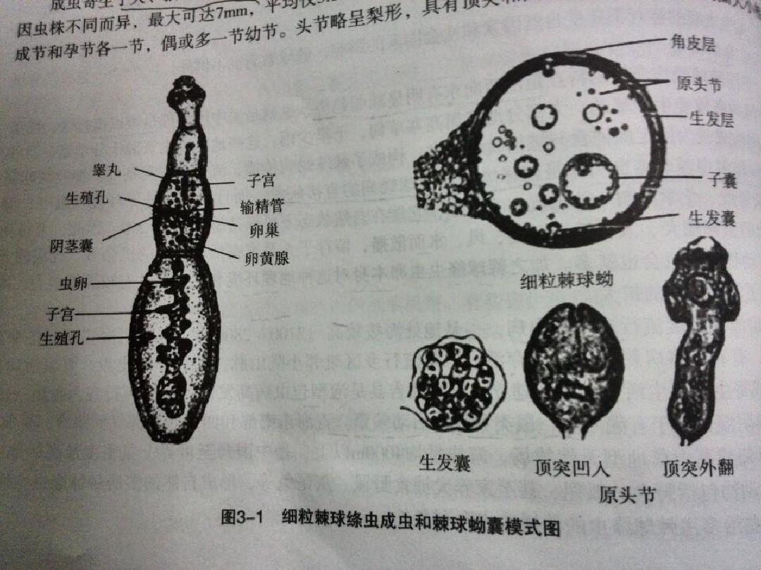 包虫病基本知识