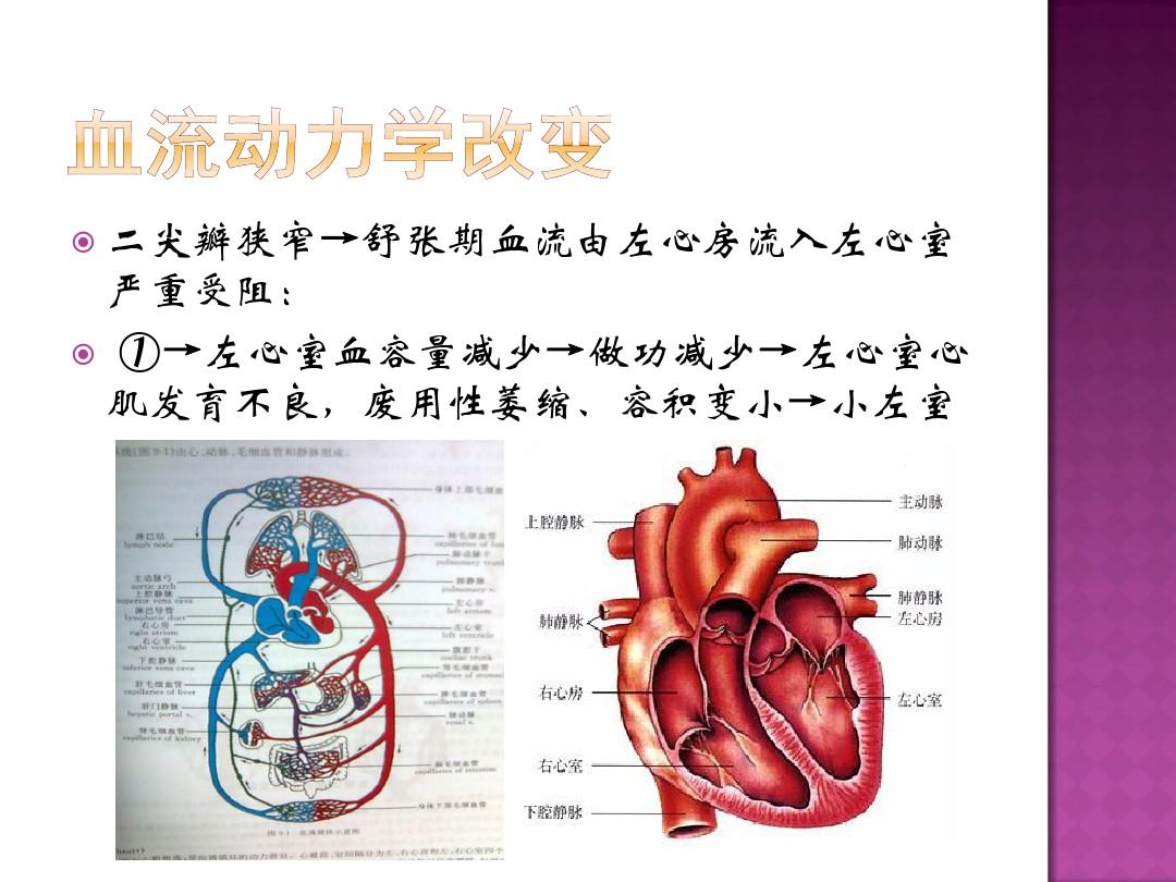 二尖瓣病变小左室患者心脏瓣膜置换术后主要ppt