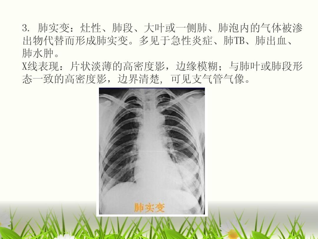 x线表现:片状淡薄的高密度影,边缘模糊;与肺叶或肺段形 态一致的高密图片