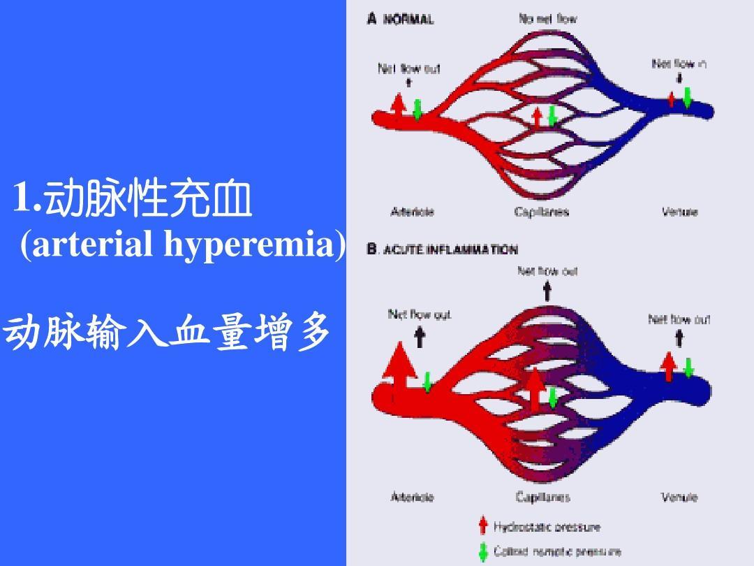 病理学 局部血液循环障碍ppt图片