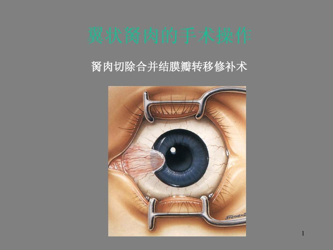 白眼球上长了胬肉图片_胬肉对飞行员体检有影响吗