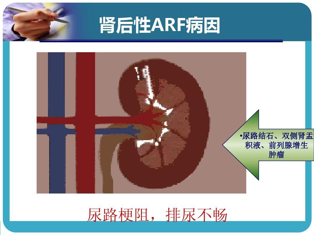 急性肾功能衰竭原因_ARF的病因-临床上常见的急性肾功能衰竭的病因有哪些?