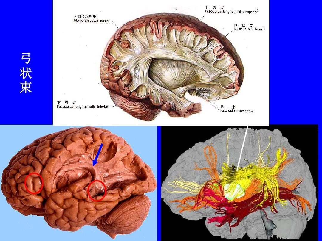 大脑结构_大脑结构与功能ppt