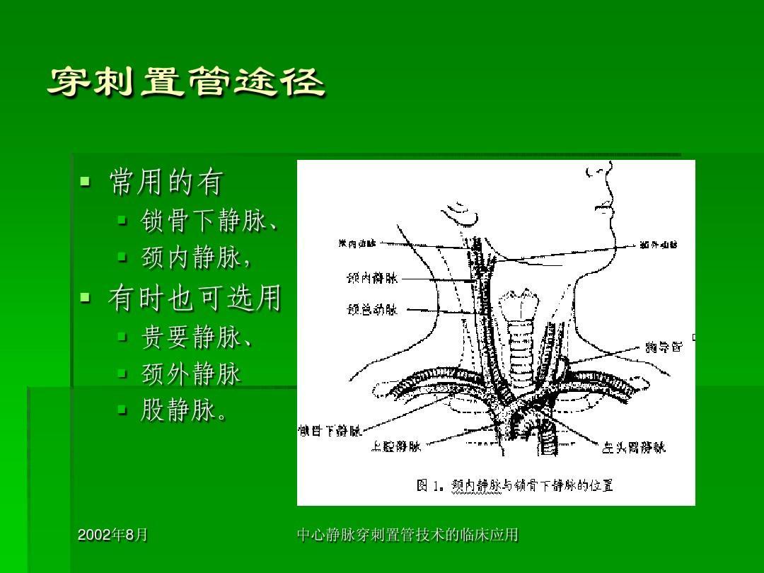 穿刺置管途径   常用的有   锁骨下静脉,   颈内静脉,   有时也可