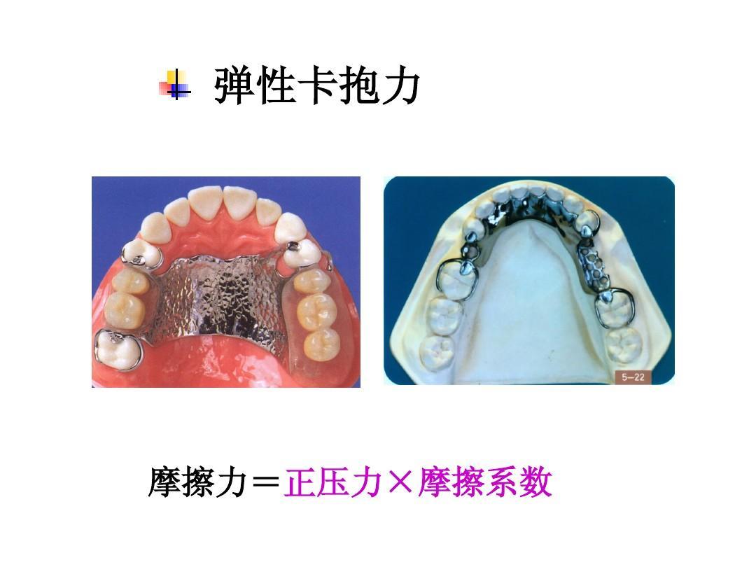 可摘局部义齿设计原则ppt图片