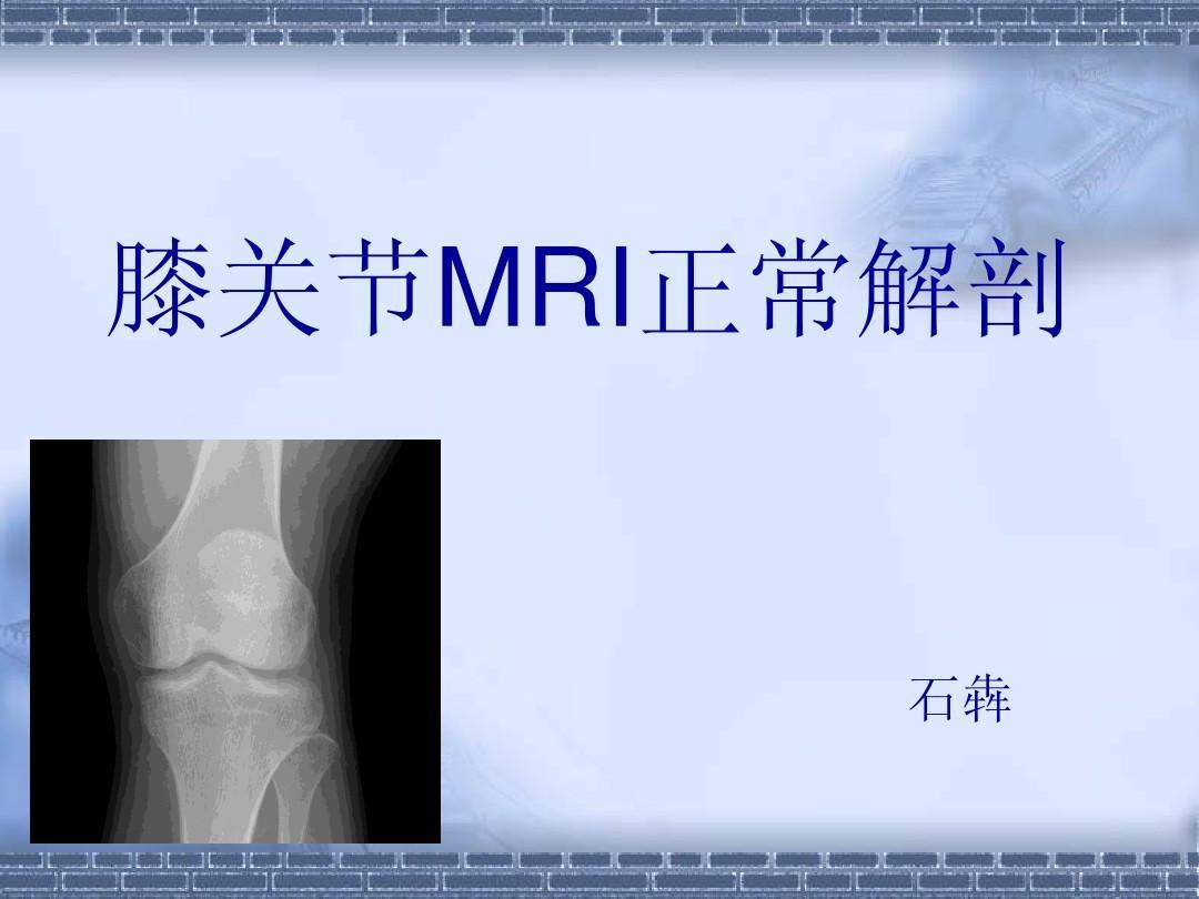 膝关节解剖PPT