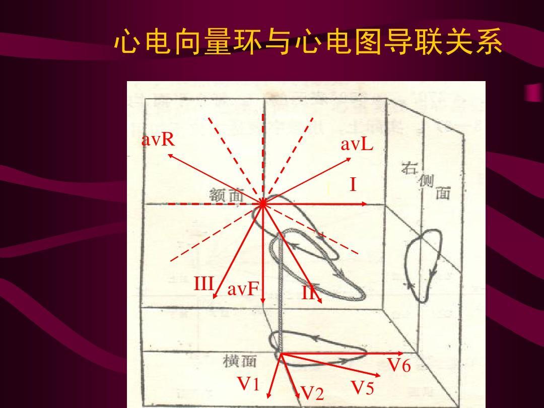 心电向量环与心电图导联关系 avr