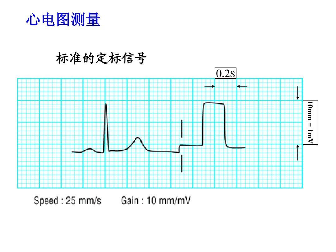心电图测量 标准的定标信号 0.2s 10mm = 1mv