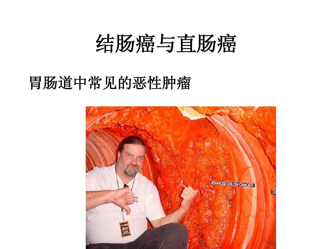结肠癌与直肠癌