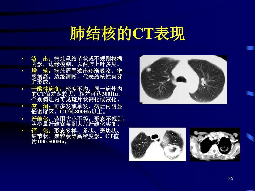 临床医学 正常胸部ctppt  肺结核的ct表现           渗 出:病灶呈