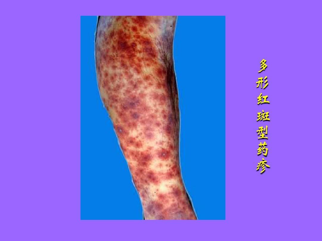 疹_多 形 红 斑 型 药 疹