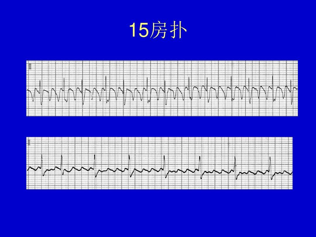 心电图典型图谱ppt