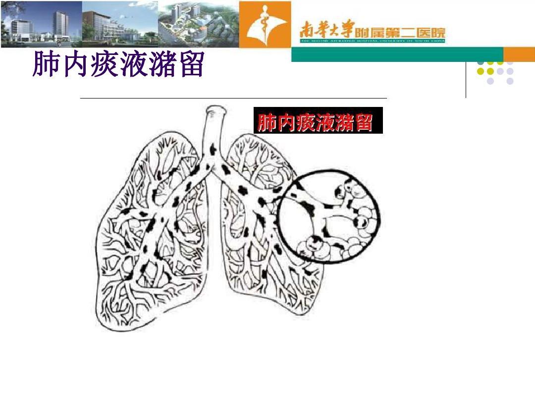 重症病人应用在雷雨物理中的治疗,体位促进,引流痰液,松动教材,指导二肺部咳痰年级电子图片