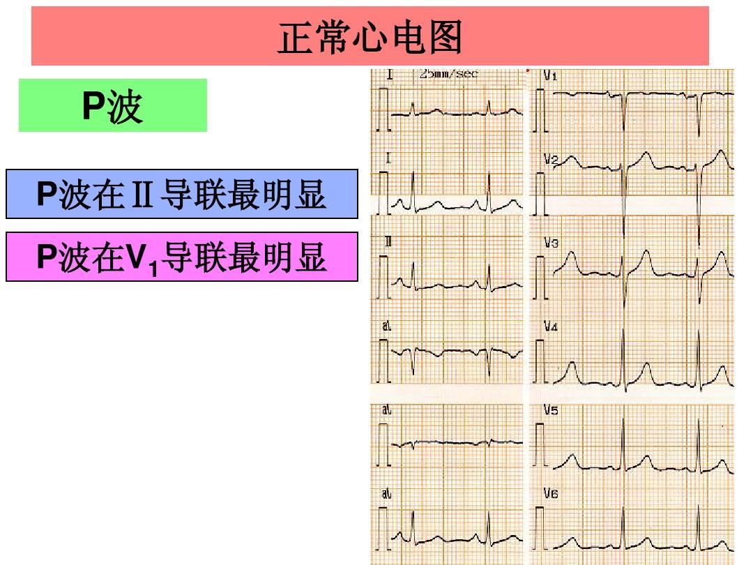 广东医学院健康评估心电图的课件 正常心电图 p波 波 p波在Ⅱ导联最