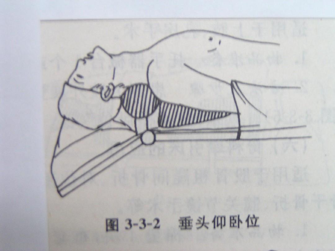 手术室常用体位摆放ppt