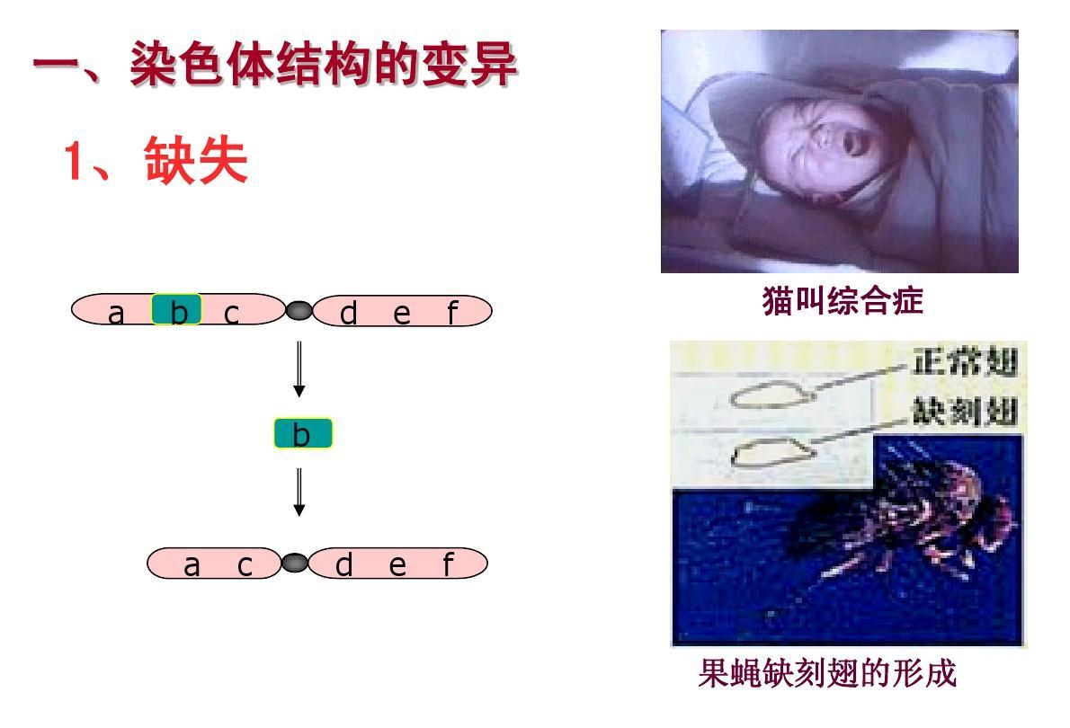 猫叫综合征_1,缺失 a b c d e f 猫叫综合症